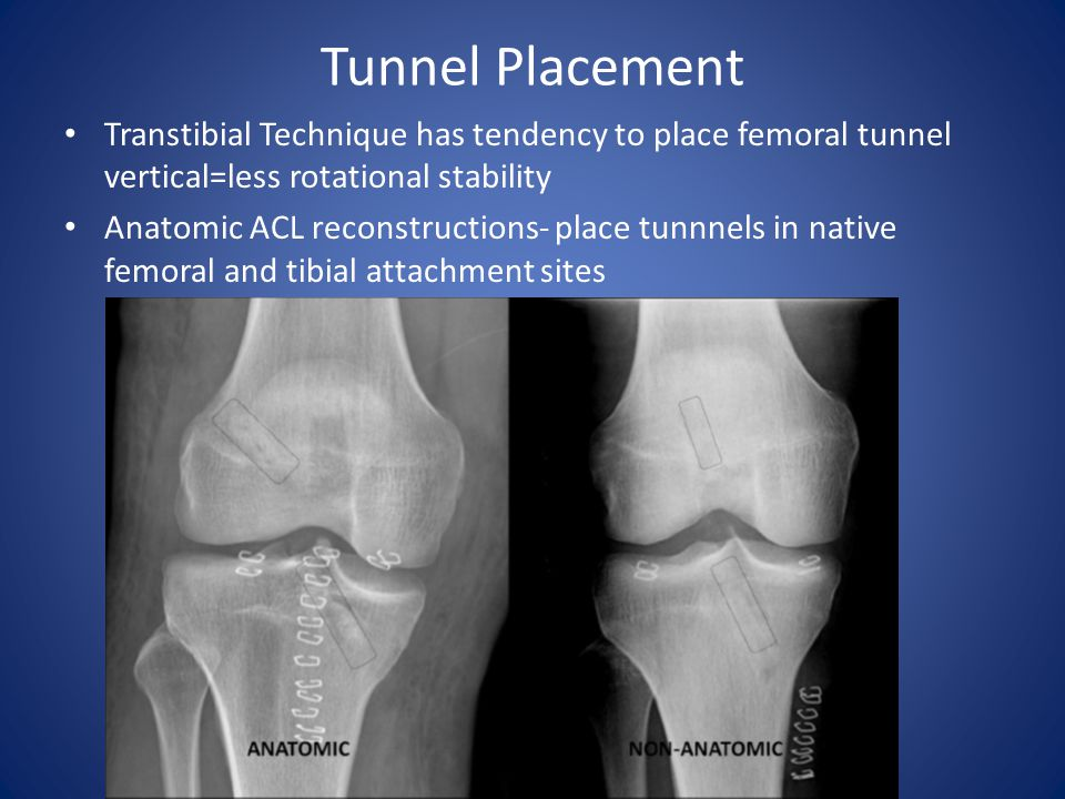 Tunnel Placement Transtibial Technique has tendency to place femoral tunnel vertical=less rotational stability.