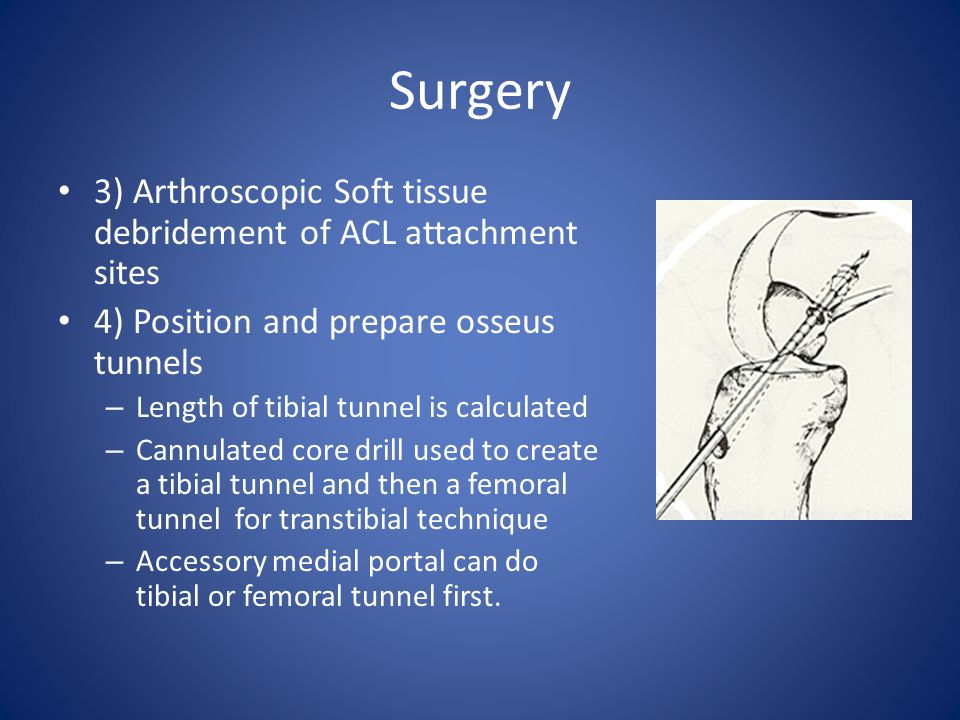Surgery 3) Arthroscopic Soft tissue debridement of ACL attachment sites. 4) Position and prepare osseus tunnels.