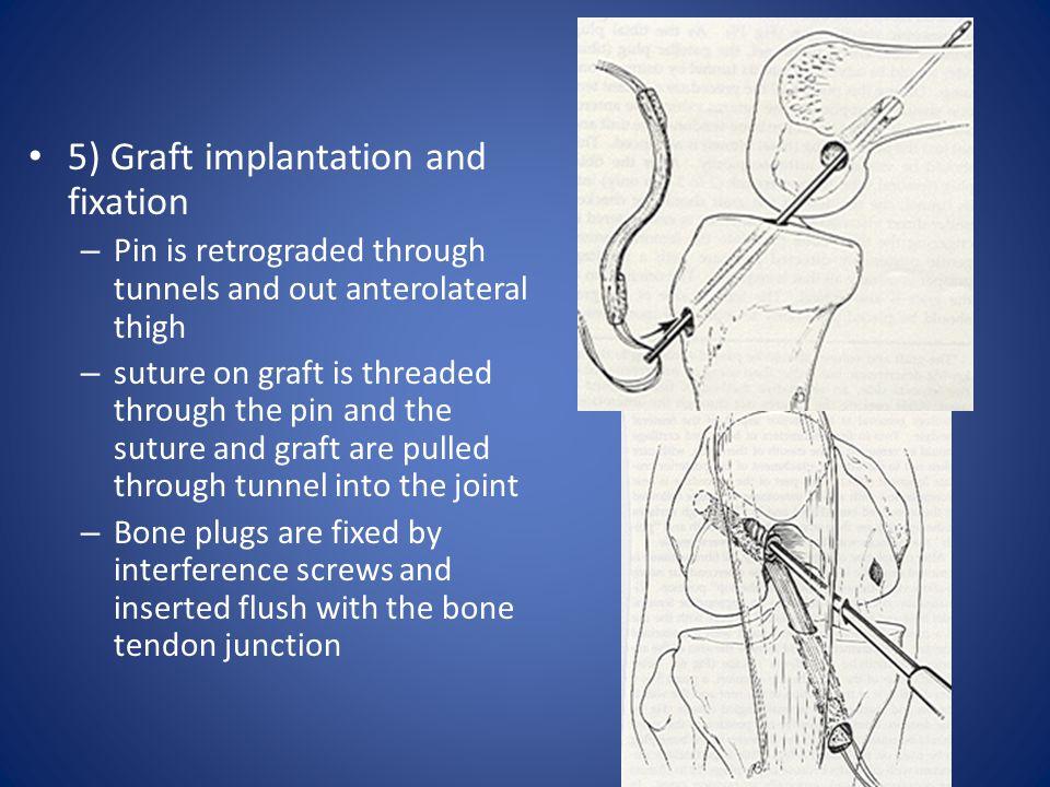 5) Graft implantation and fixation