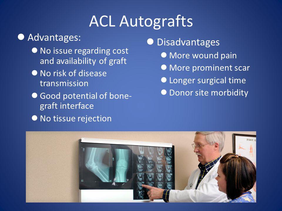 ACL Autografts Advantages: Disadvantages