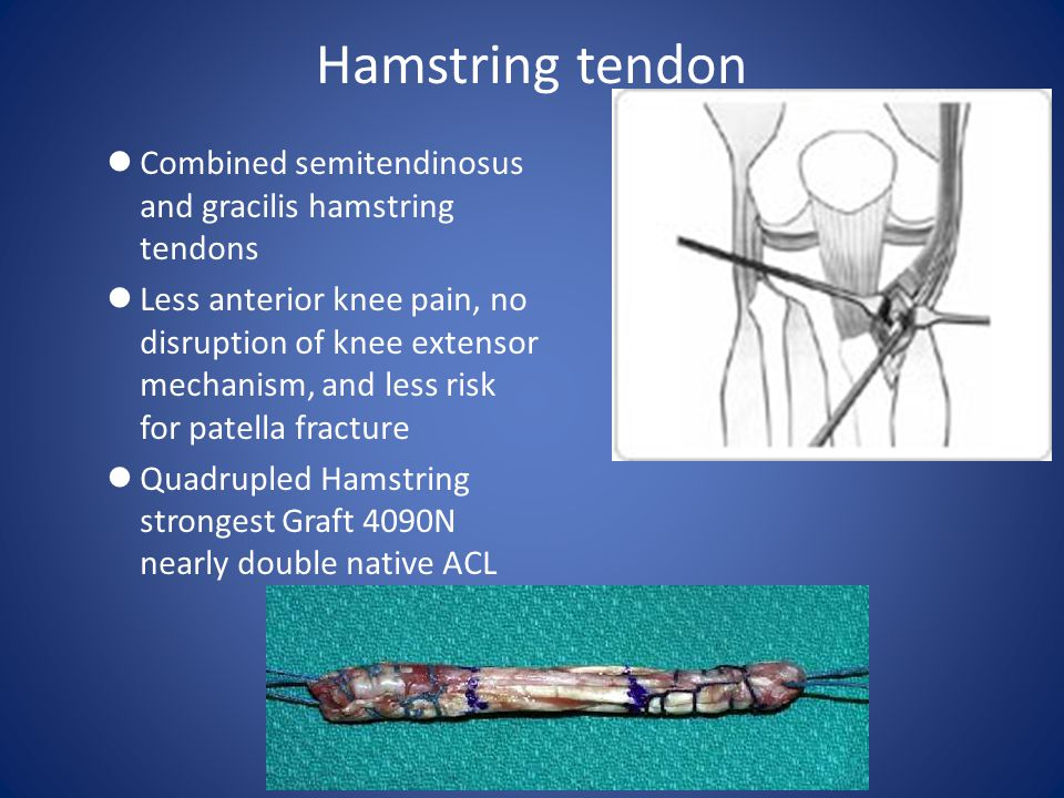 Hamstring tendon Combined semitendinosus and gracilis hamstring tendons.