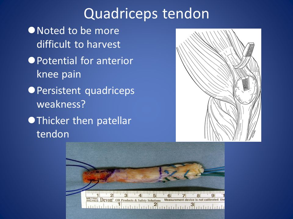 Quadriceps tendon Noted to be more difficult to harvest