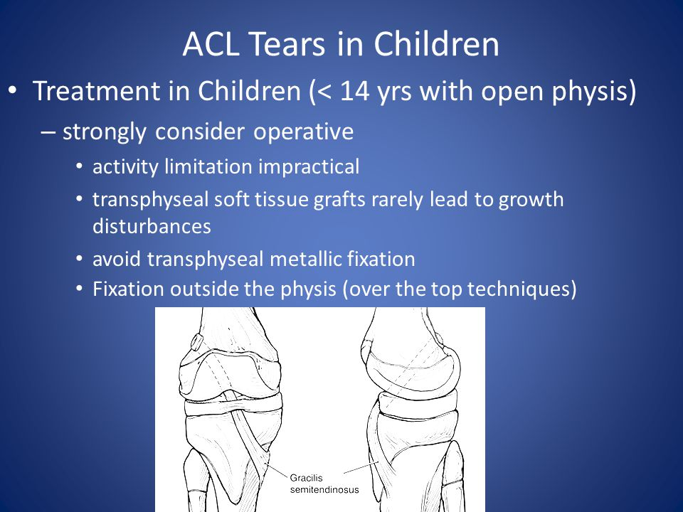 ACL Tears in Children Treatment in Children (< 14 yrs with open physis) strongly consider operative.