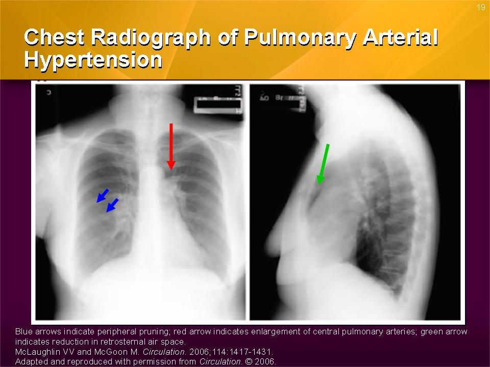This slide shows a chest radiograph of an individual with PAH