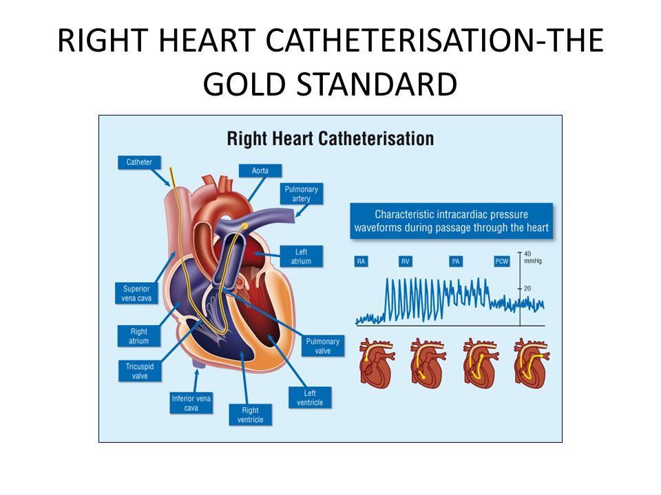 RIGHT HEART CATHETERISATION-THE GOLD STANDARD
