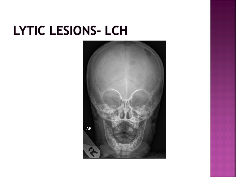 Lytic lesions- LCH