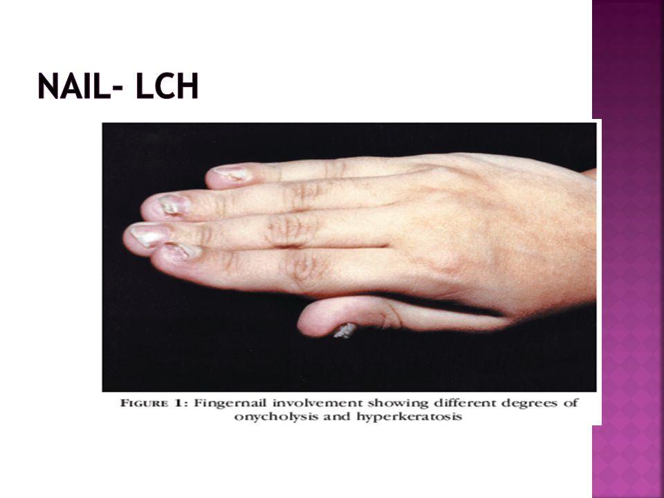 Nail- LCH