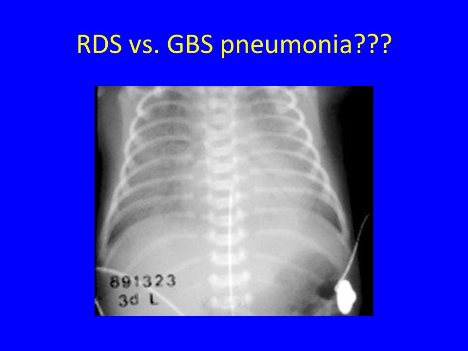 RDS vs. GBS pneumonia