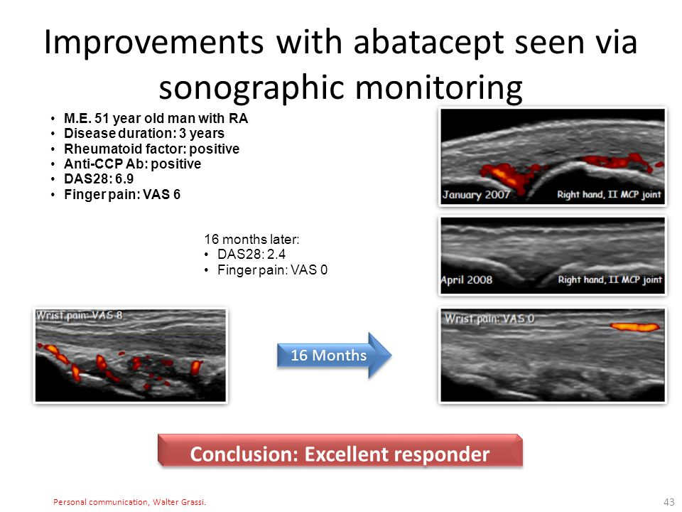 Improvements with abatacept seen via sonographic monitoring