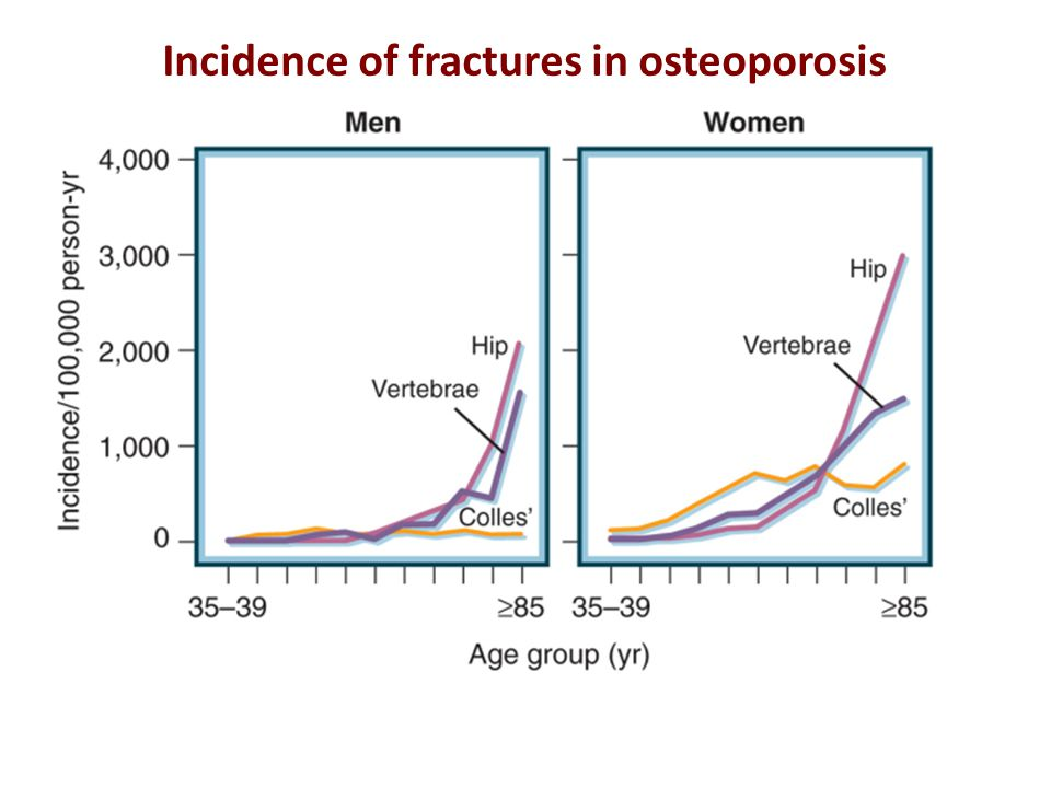 Incidence of fractures in osteoporosis
