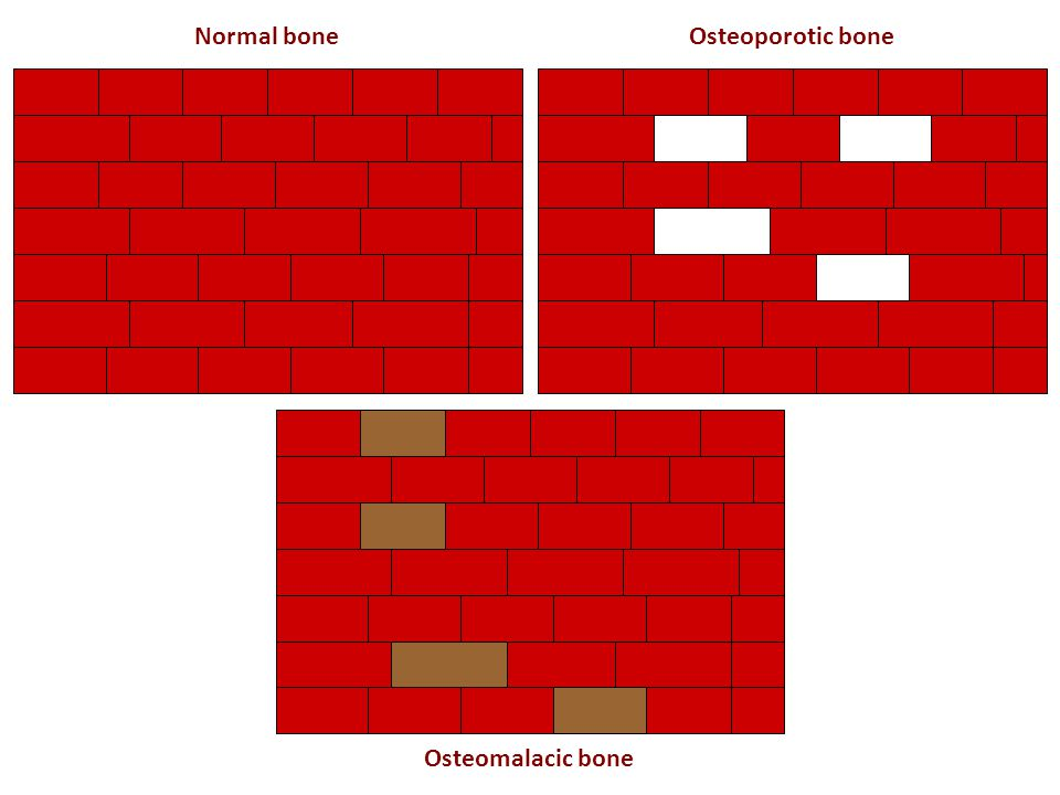 Normal bone Osteoporotic bone Osteomalacic bone