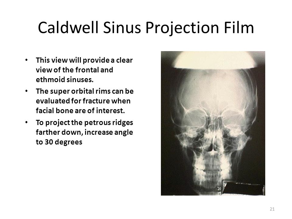 Caldwell Sinus Projection Film