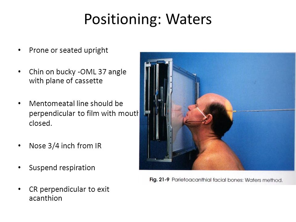 Positioning: Waters Prone or seated upright