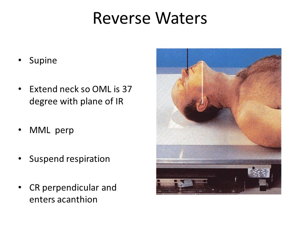 Reverse Waters Supine Extend neck so OML is 37 degree with plane of IR