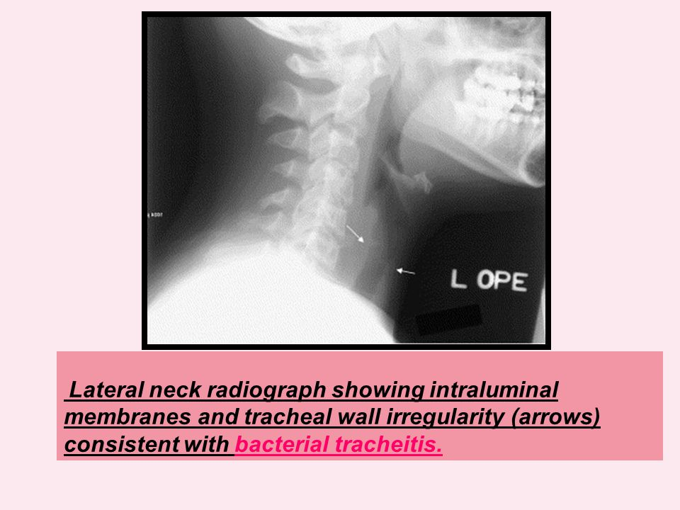 Lateral neck radiograph showing intraluminal membranes and tracheal wall irregularity (arrows) consistent with bacterial tracheitis.