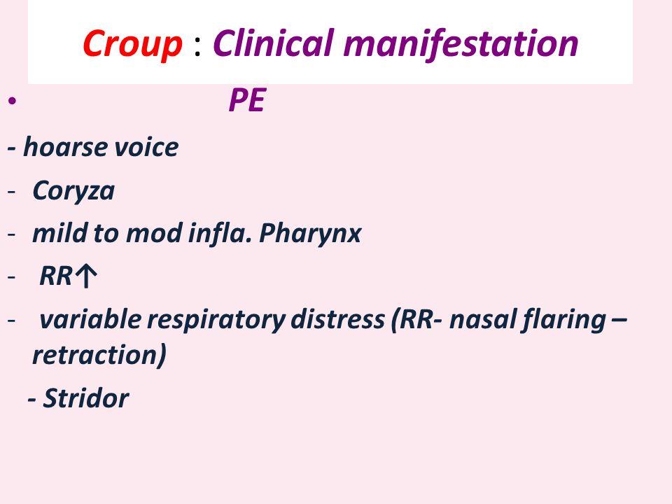 Croup : Clinical manifestation