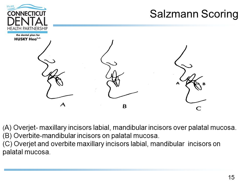Salzmann Scoring (B) Overbite-mandibular incisors on palatal mucosa.