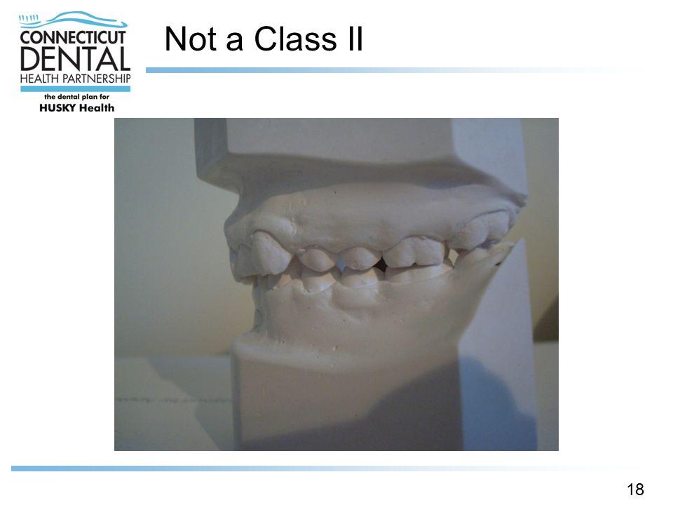 Not a Class II