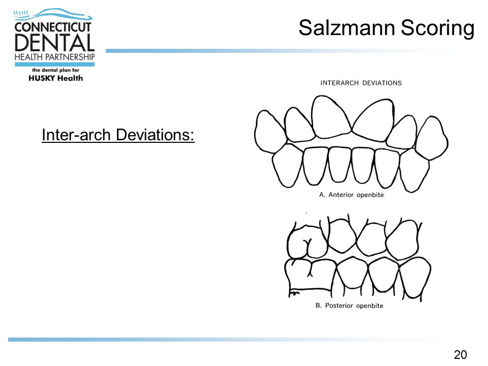 Salzmann Scoring Inter-arch Deviations:
