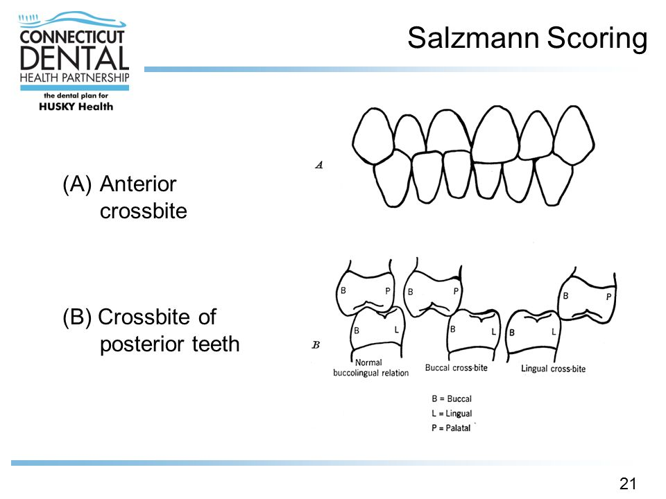 Salzmann Scoring Anterior crossbite (B) Crossbite of posterior teeth