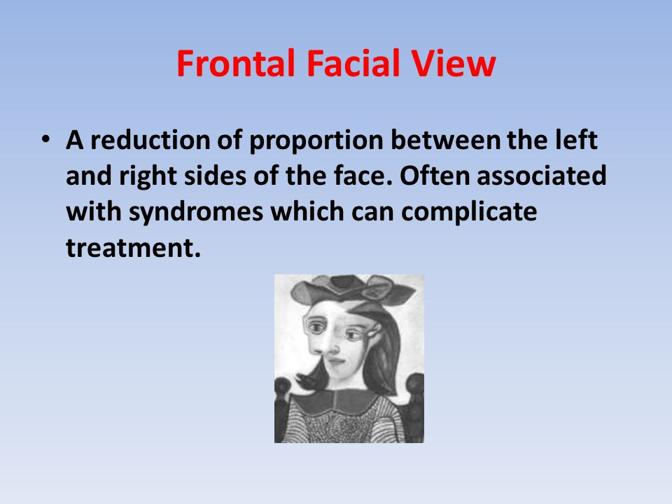 Frontal Facial View