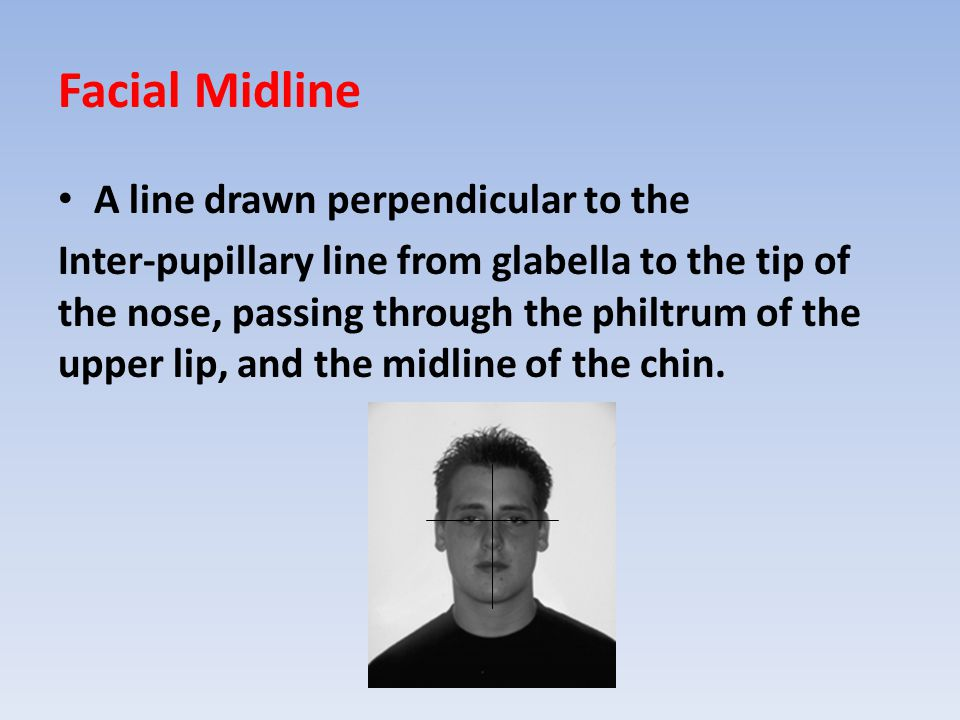 Facial Midline A line drawn perpendicular to the