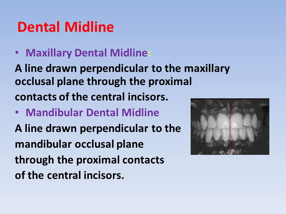 Dental Midline Maxillary Dental Midline: