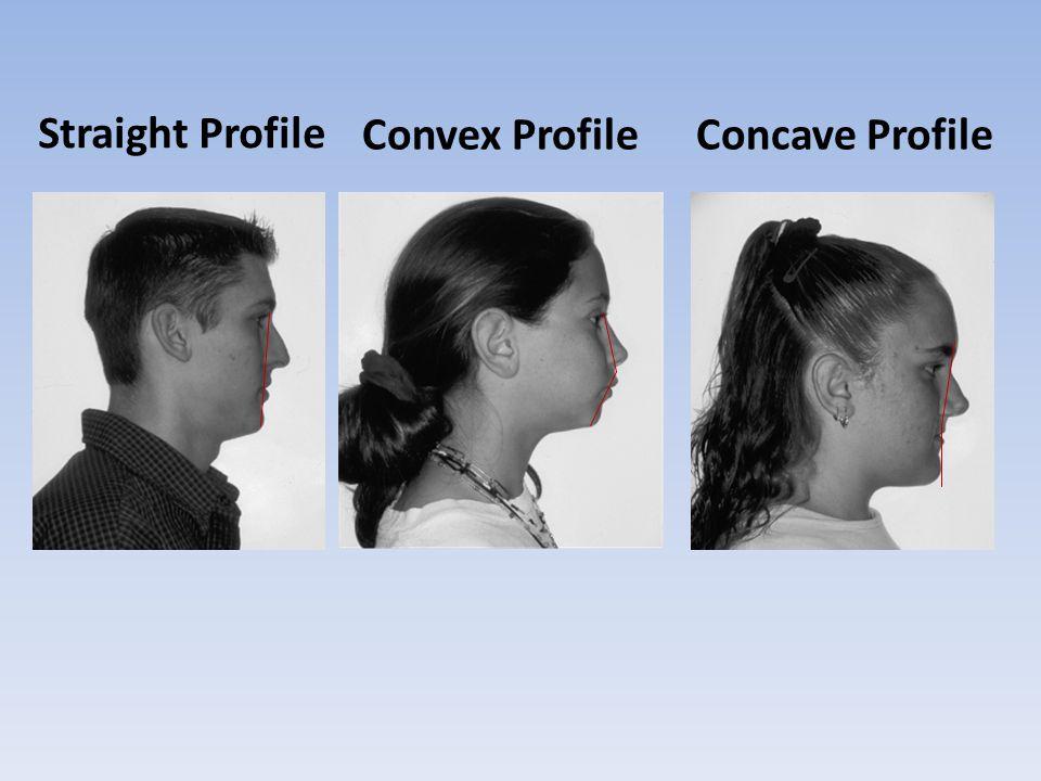 Straight Profile Convex Profile Concave Profile