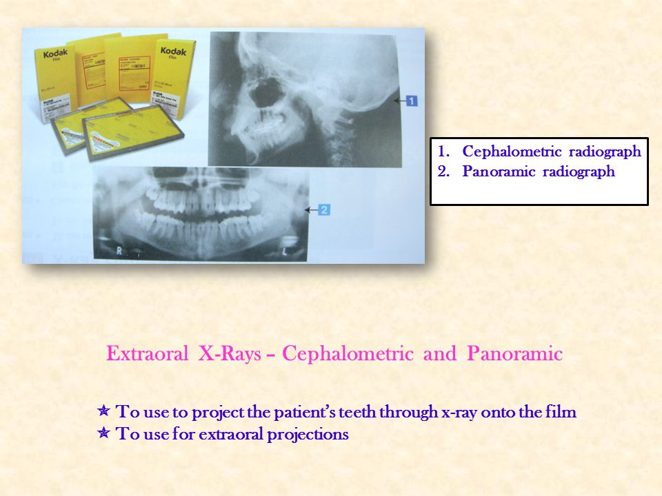Extraoral X-Rays – Cephalometric and Panoramic