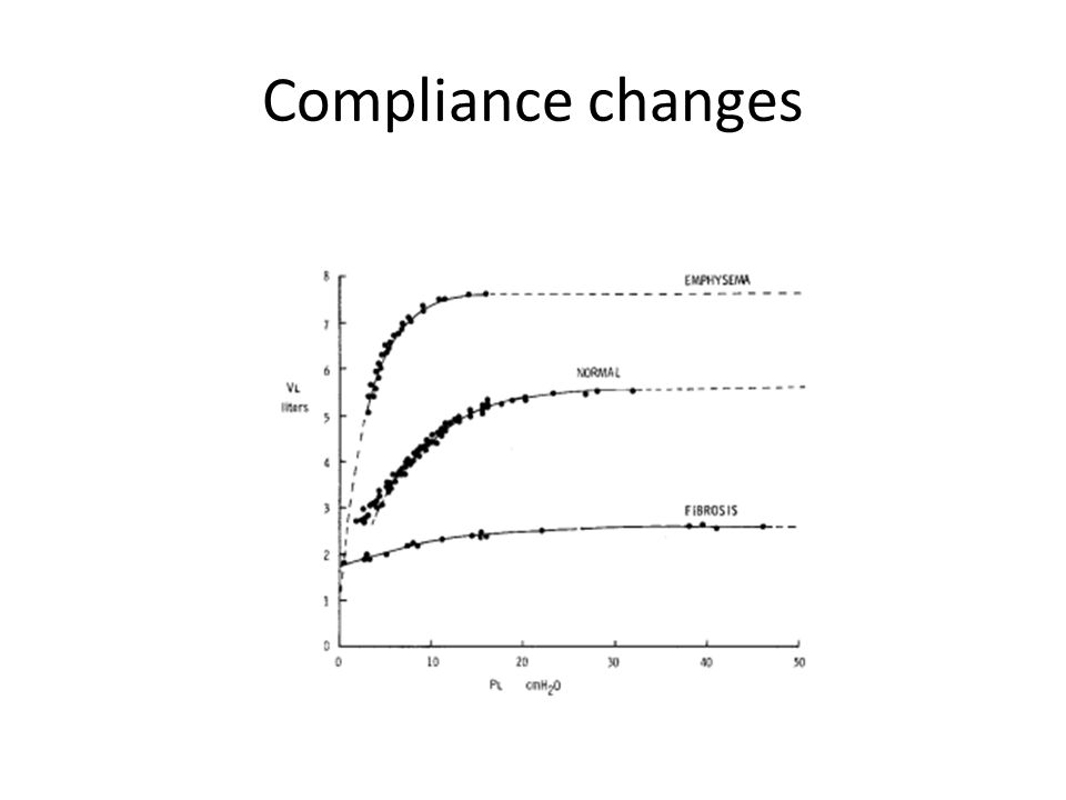 Compliance changes