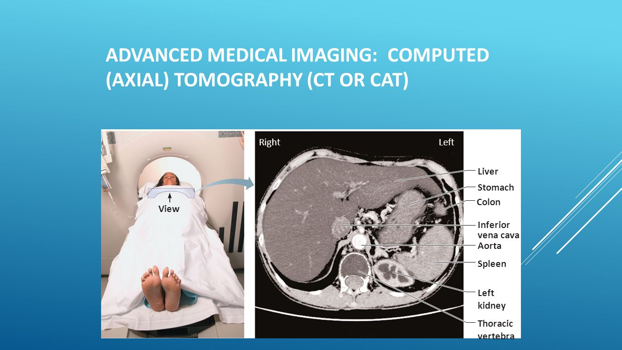 Advanced Medical Imaging: Computed (Axial) Tomography (CT or CAT)