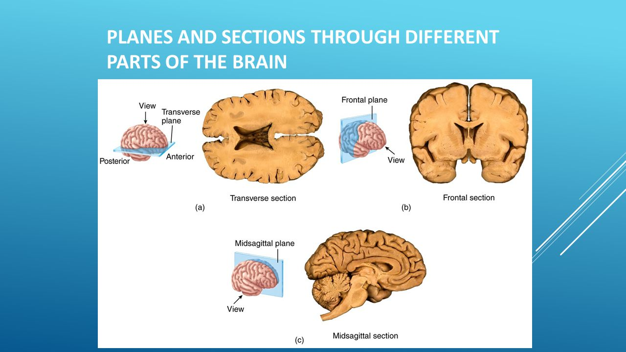 Planes and sections through different parts of the brain