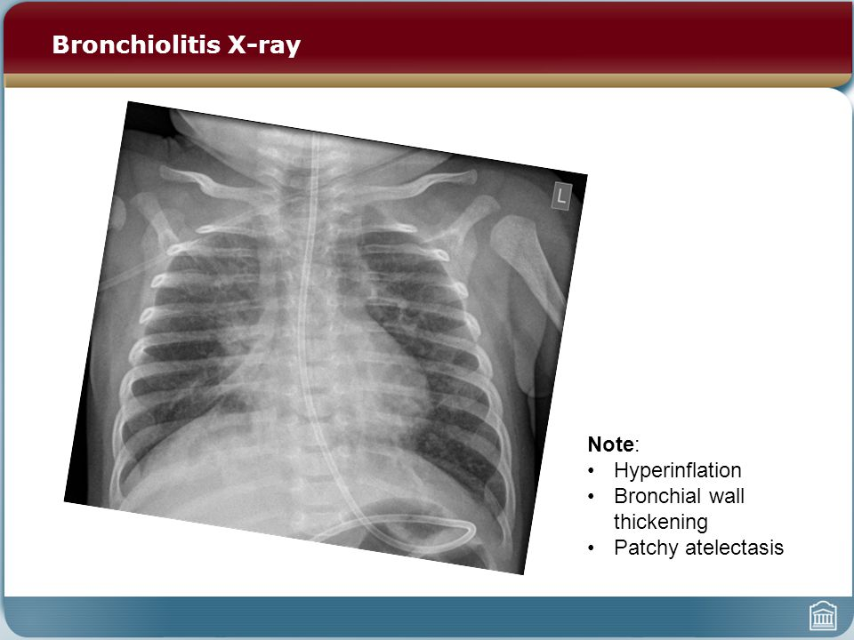 Bronchiolitis X-ray Note: Hyperinflation Bronchial wall thickening