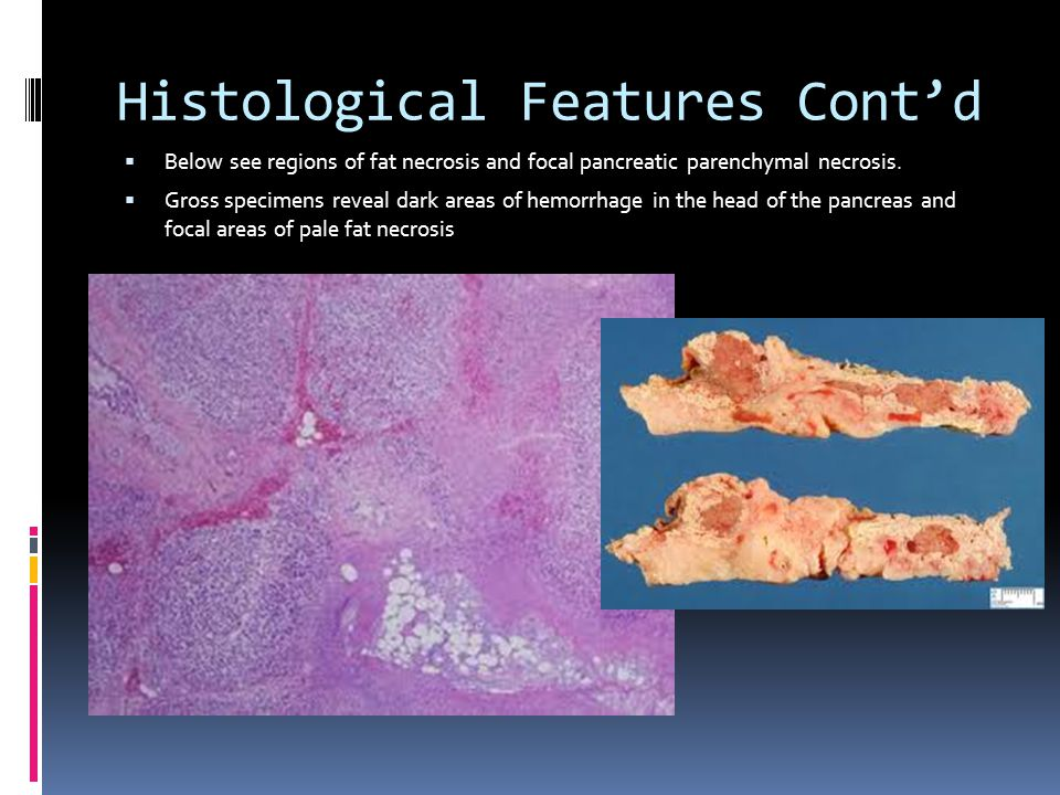 Histological Features Cont'd