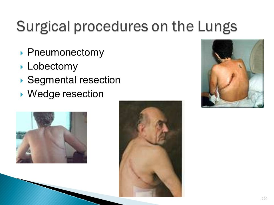Surgical procedures on the Lungs
