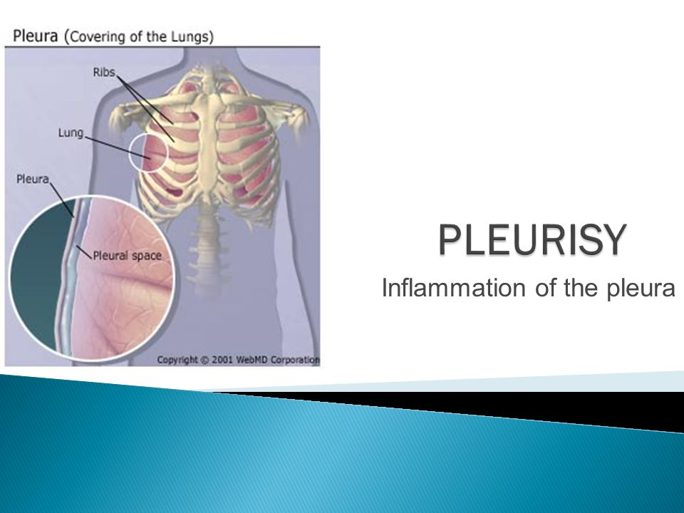 Inflammation of the pleura