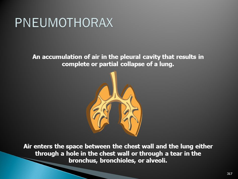 PNEUMOTHORAX An accumulation of air in the pleural cavity that results in complete or partial collapse of a lung.