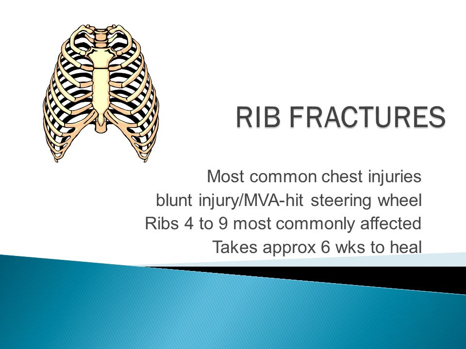 RIB FRACTURES Most common chest injuries