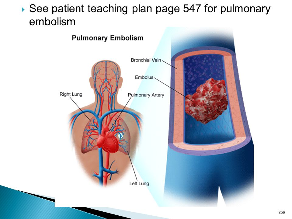 See patient teaching plan page 547 for pulmonary embolism