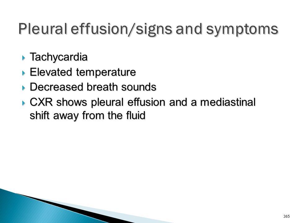 Pleural effusion/signs and symptoms