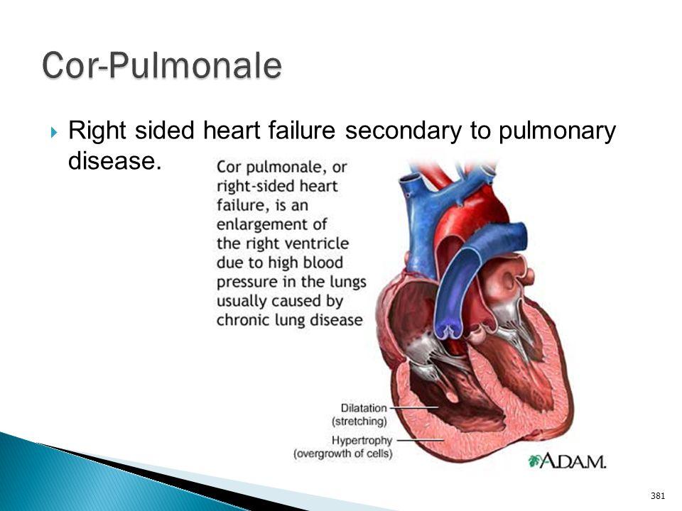 Cor-Pulmonale Right sided heart failure secondary to pulmonary disease.