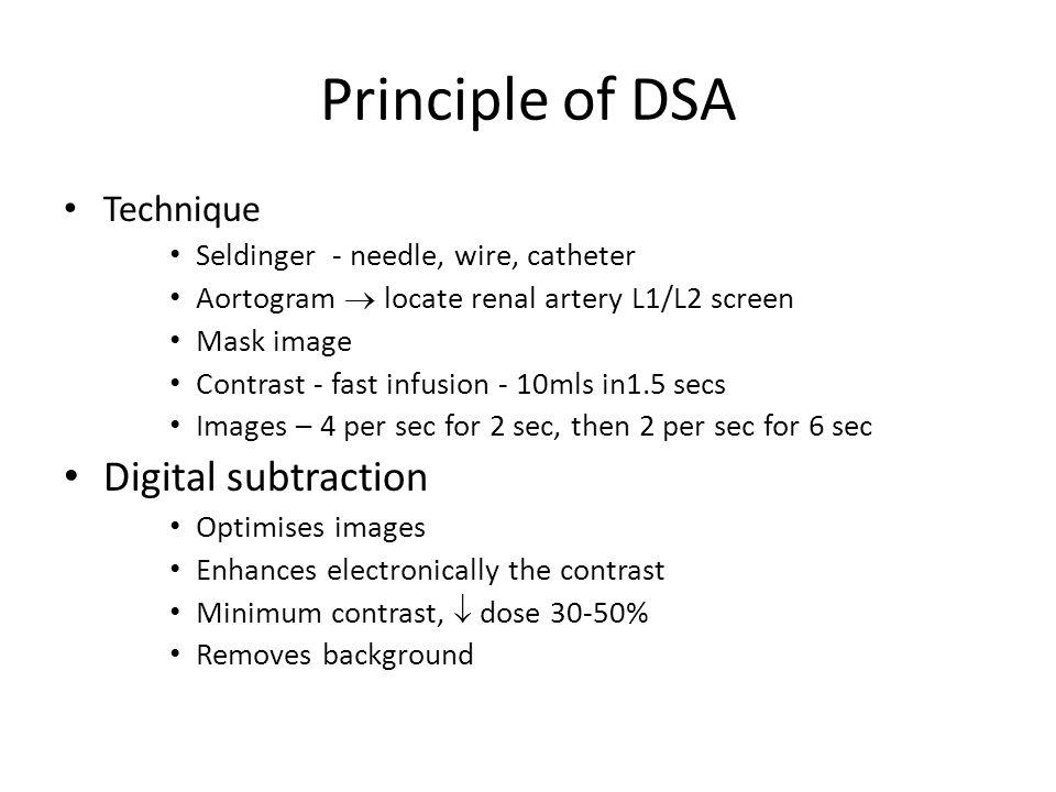 Principle of DSA Digital subtraction Technique