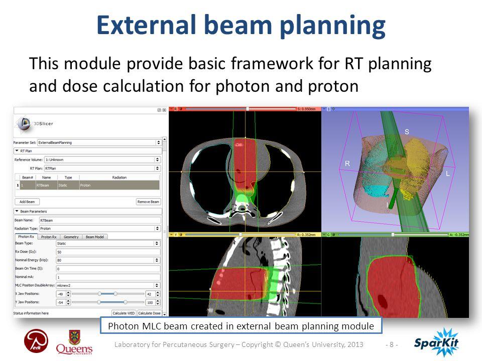 External beam planning