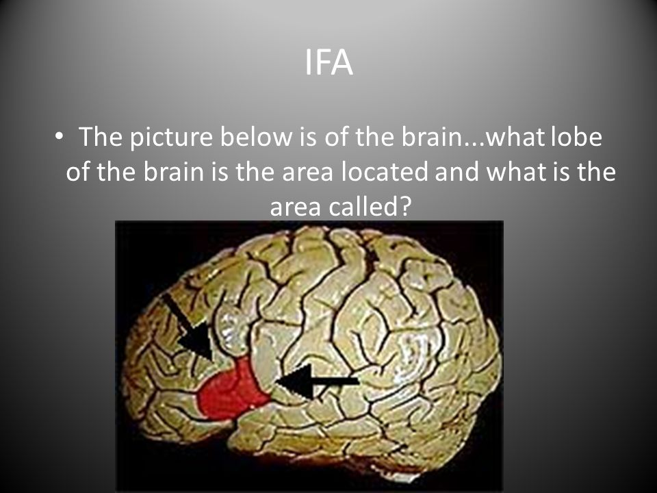 IFA The picture below is of the brain...what lobe of the brain is the area located and what is the area called