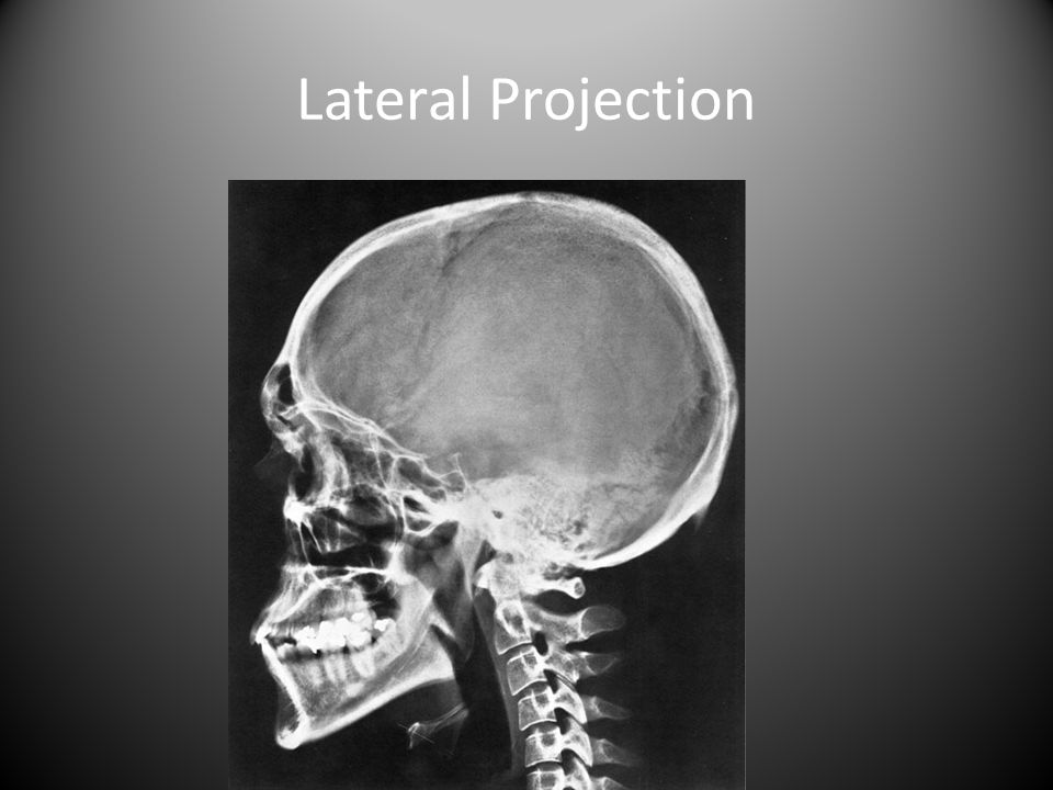 Lateral Projection