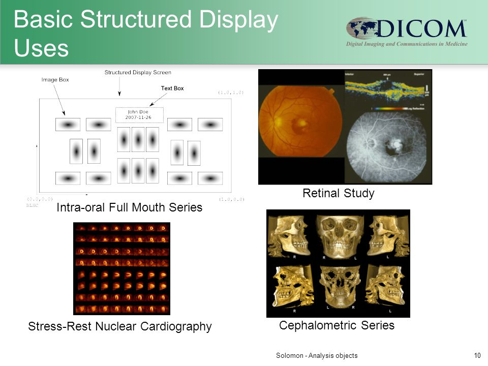 Basic Structured Display Uses