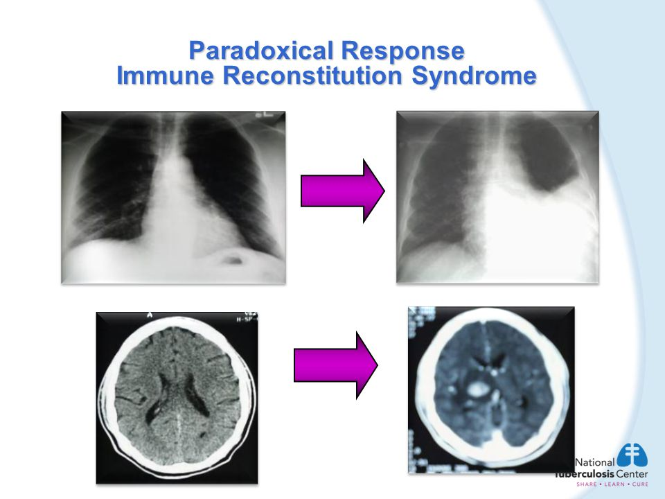 Paradoxical Response Immune Reconstitution Syndrome