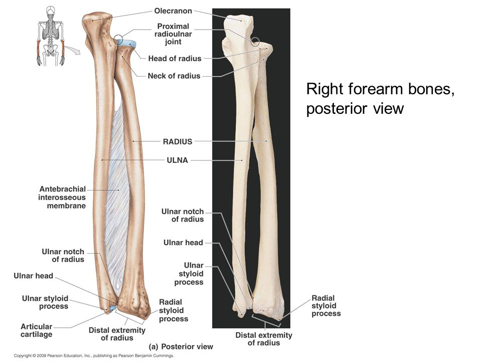 Right forearm bones, posterior view