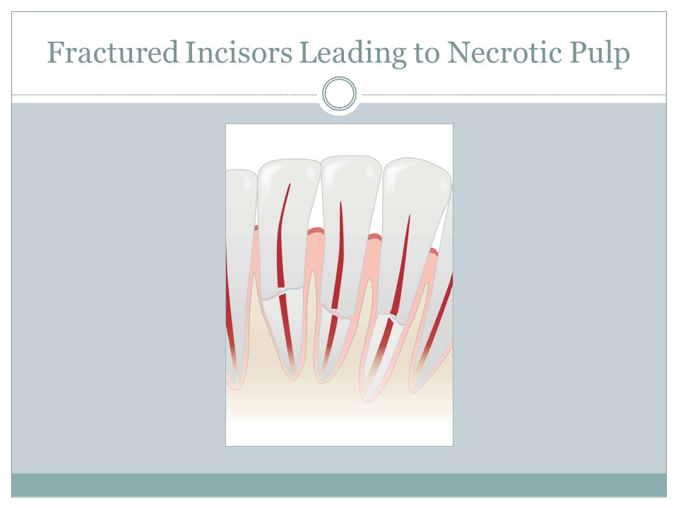 Fractured Incisors Leading to Necrotic Pulp