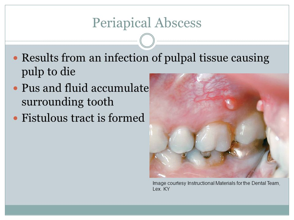 Periapical Abscess Results from an infection of pulpal tissue causing pulp to die. Pus and fluid accumulate and form in the bone surrounding tooth.